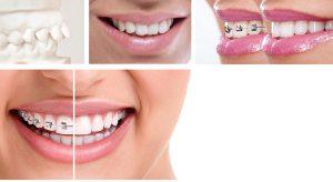 Adult Orthodontist Glendale