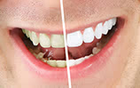Laser Teeth Whitening Glendale