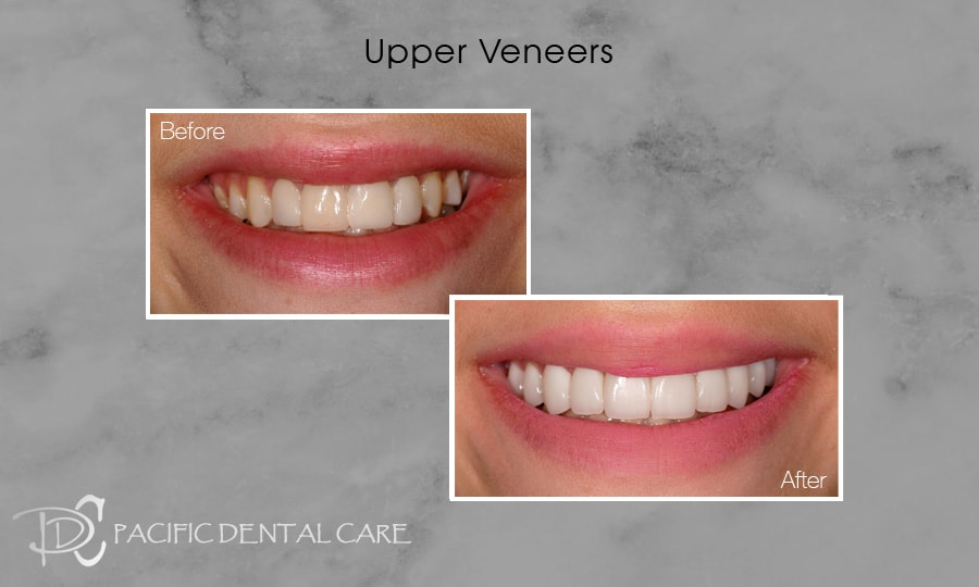Upper Veneers Before and After