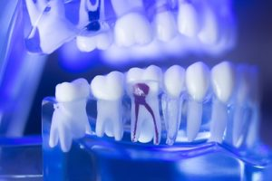 The Ins and Outs of Root Canals