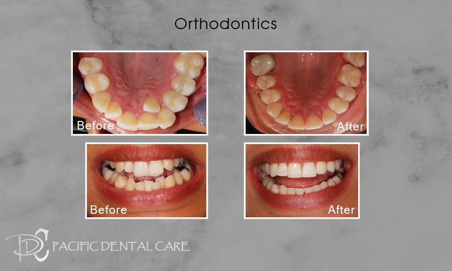 Orthodontics 1