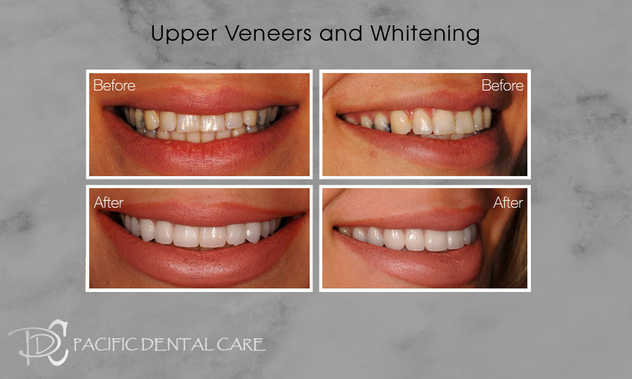 Upper Veneers and Whitening Before and After