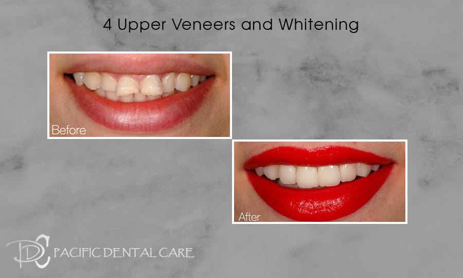 4 Upper Veneers and Whitening Before and After