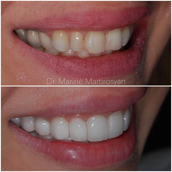 Veneer Before and After 1