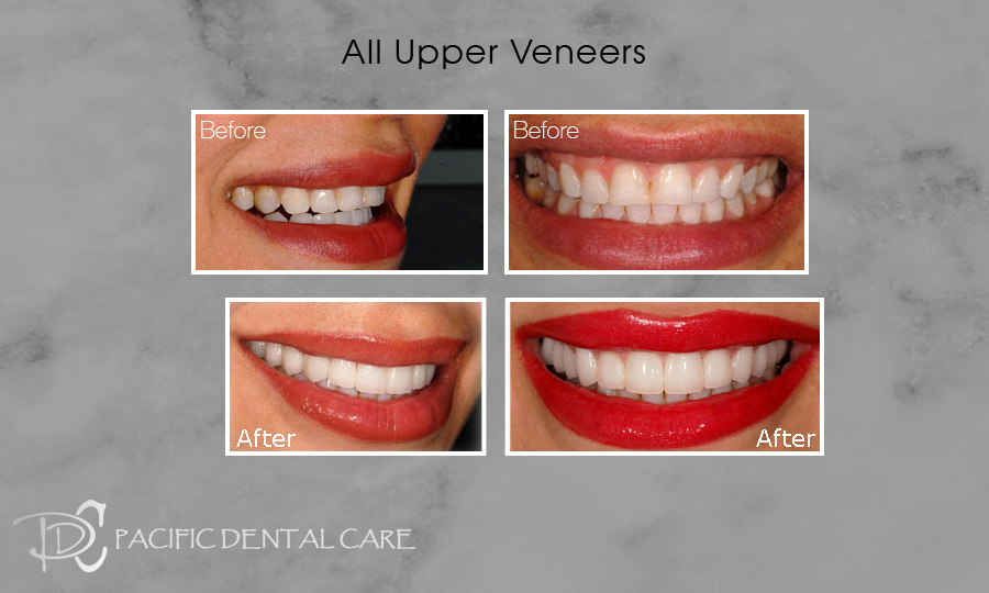 All Upper Veneers Before and After