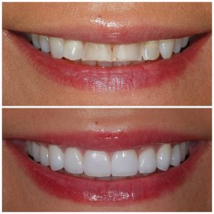 Before and After Veneers Front