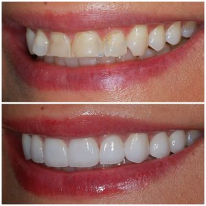 Before and After Veneers Left Oblique