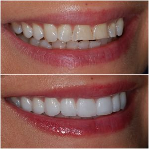 Before and After Veneers Right Oblique
