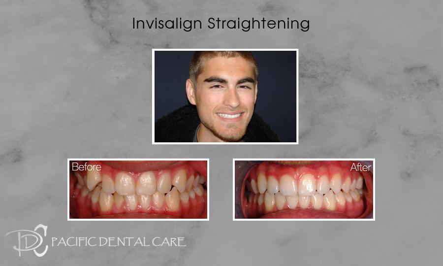 Invisalign Orthodontics and Straightening 1