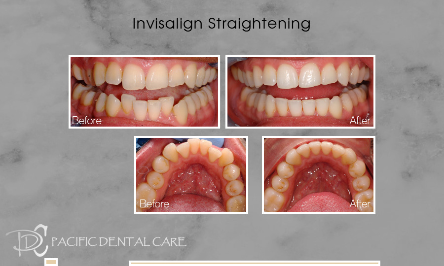 Invisalign Orthodontics Before and After Case 4