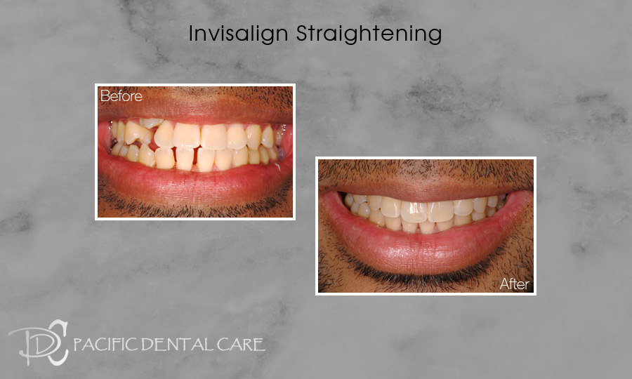 Invisalign Orthodontics Before and After Case 5