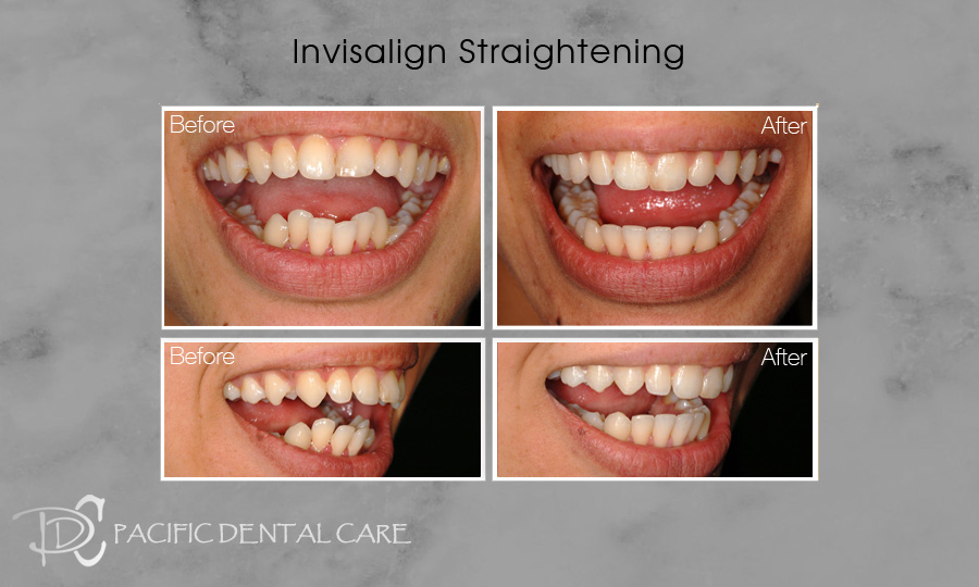 Invisalign Orthodontics Before and After Case 6