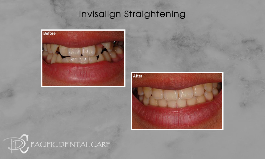 Invisalign Orthodontics Before and After Case 7