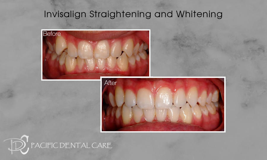 Invisalign Straightening and Whitening Before and After 8