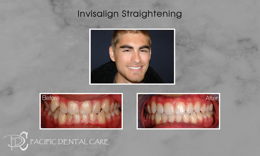 Invisalign Straightening Before and After 1