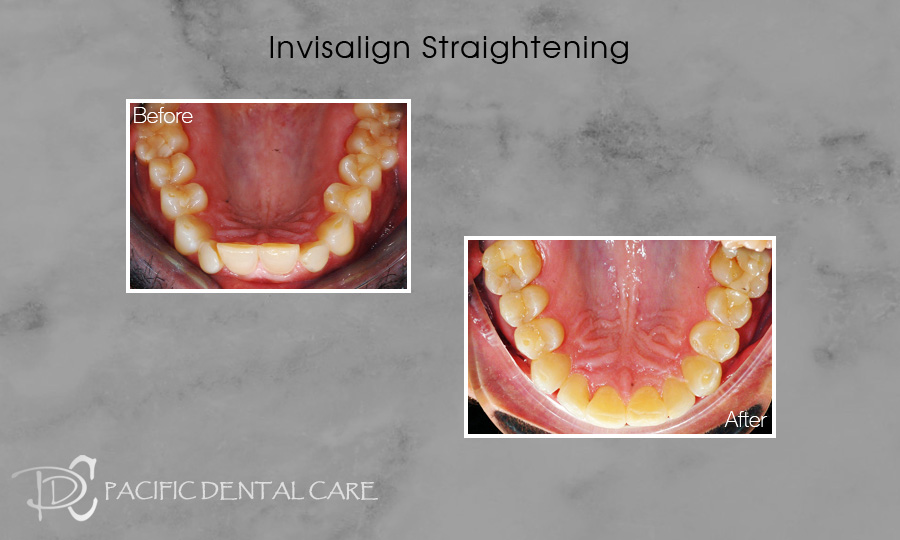 Invisalign Straightening Before and After 2