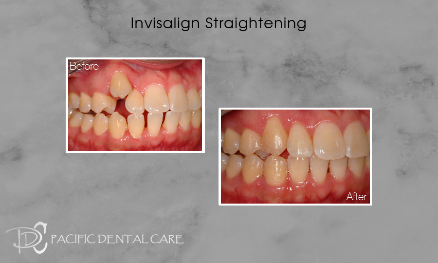 Invisalign Straightening Before and After 3