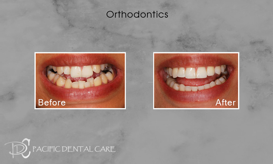 Orthodontics Before After Case 11