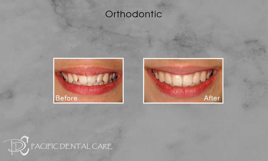 Orthodontics Before After Case 12
