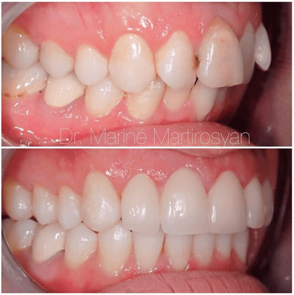 Orthodontics Before and After Case 10