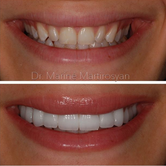 Orthodontics Before and After Case 4