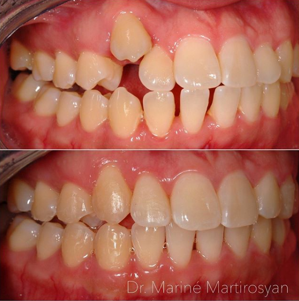 Orthodontics Before and After Case 5
