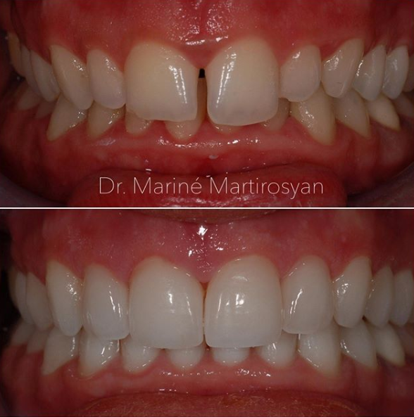 Orthodontics Before and After Case 6
