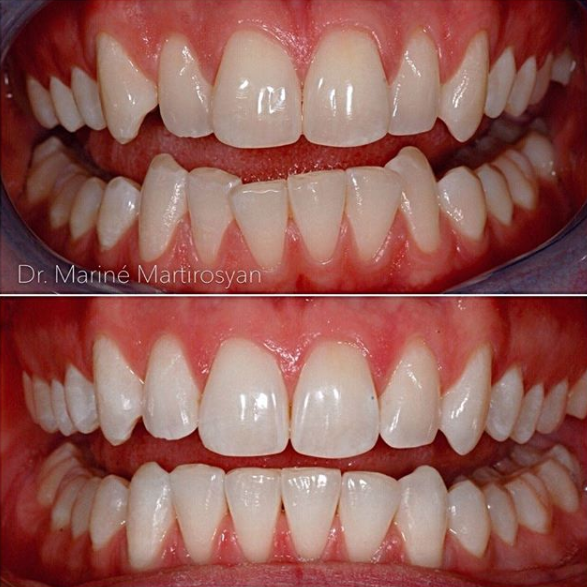 Orthodontics Before and After Case 7
