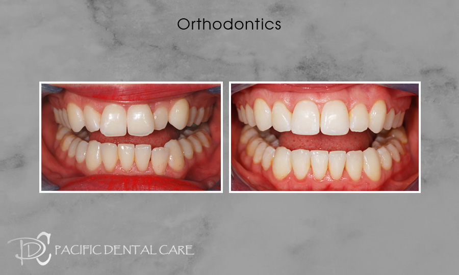 Orthodontics Before and After Case 9