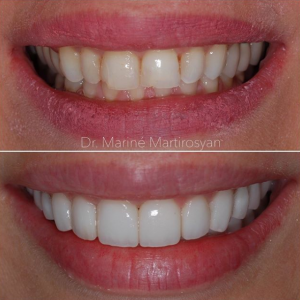 Porcelain Veneers Before and After 9