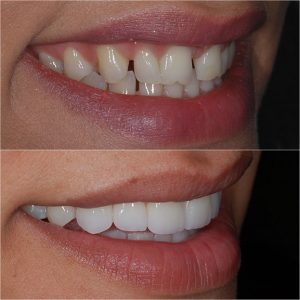 Porcelain Veneers Before and After 1
