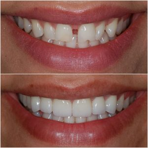 Porcelain Veneers Before and After 2