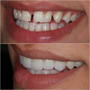 Porcelain Veneers Before and After 3