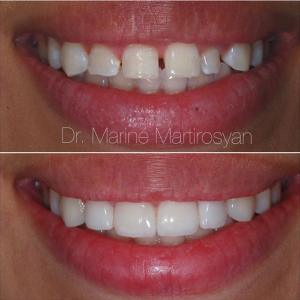 Porcelain Veneers Before and After Case 7