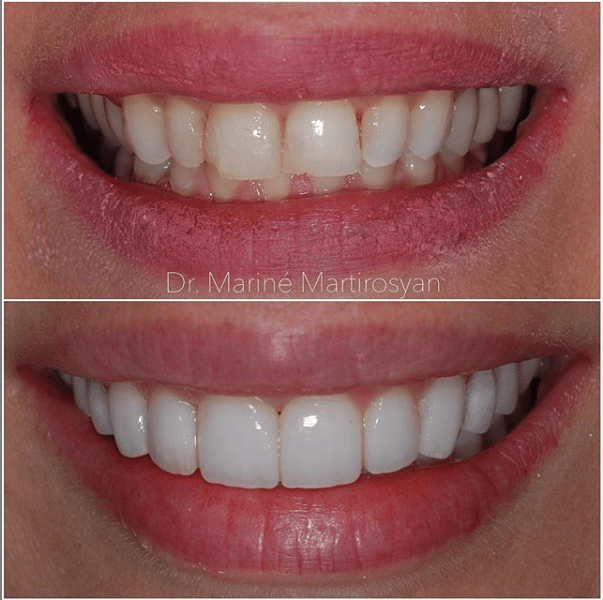 Teeth Whitening Before and After Case 1