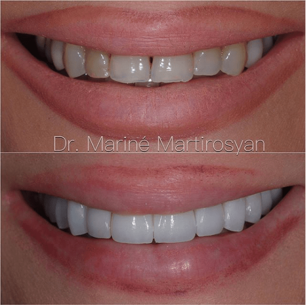 Teeth Whitening Before and After Case 2