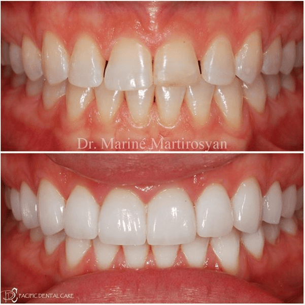 Teeth Whitening Before and After Case 4