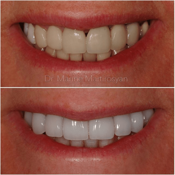 Teeth Whitening Before and After Case 5
