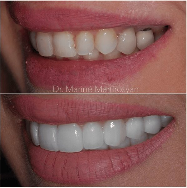 Teeth Whitening Before and After Case 6