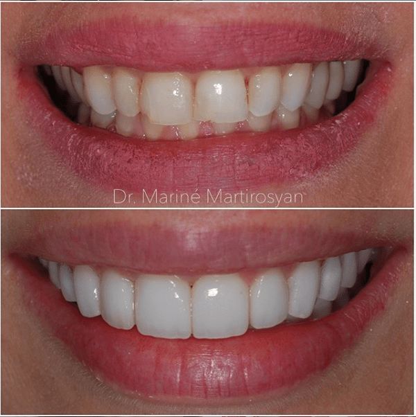 Teeth Whitening Before and After Case 7