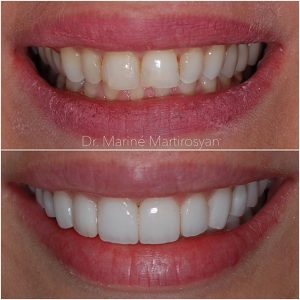 Veneer Before and After 2