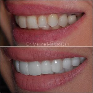 Veneer Before and After 3