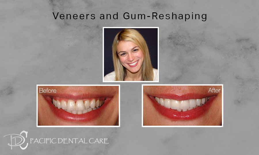 Veneers and Gum Reshaping Before and After