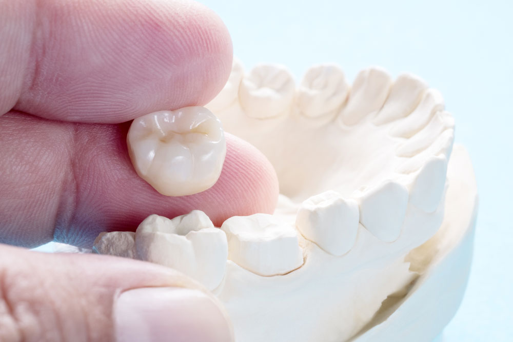 Choosing the Best Dental Crown for Your Treatment
