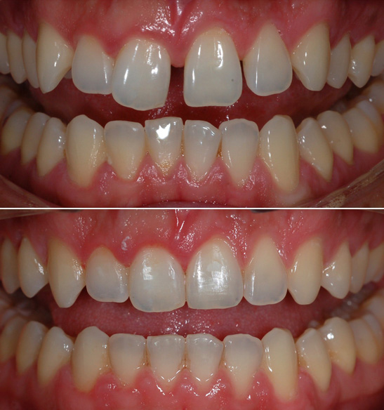 Orthodontics Before and After 3
