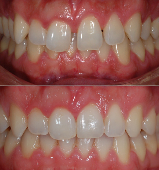 Orthodontics Before and After 8