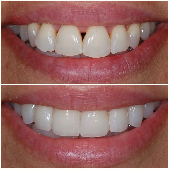 Veneers Before and After Front 21