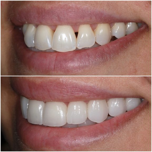 Veneers Before and After Left 21