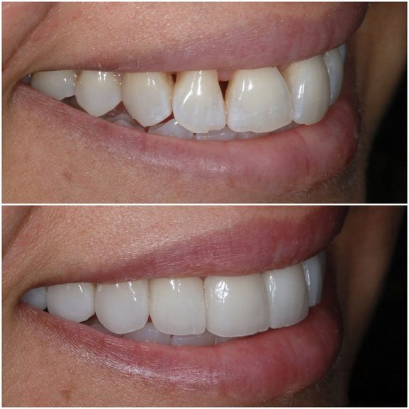 Veneers Before and After Right 21