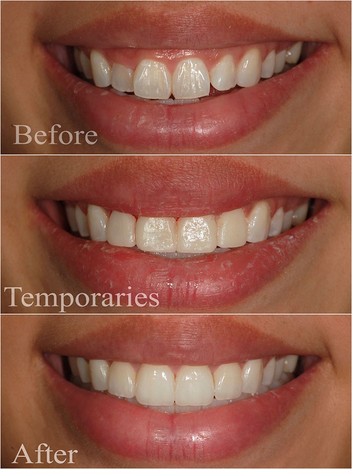 Veneer Placement Before and After